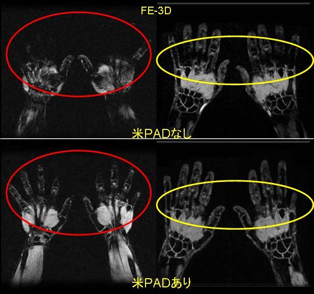 抑制 mri 脂肪 MRIの脂肪抑制法について質問です。STIRやCHESSなど