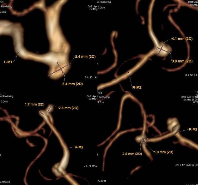 真の」後交通動脈瘤について | M...