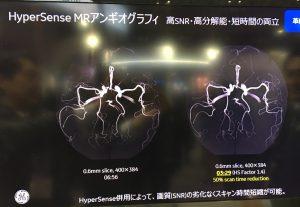 HyperSense MR Angiography