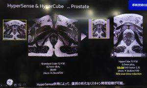 HyperSense & Hyper Cube - Prostate